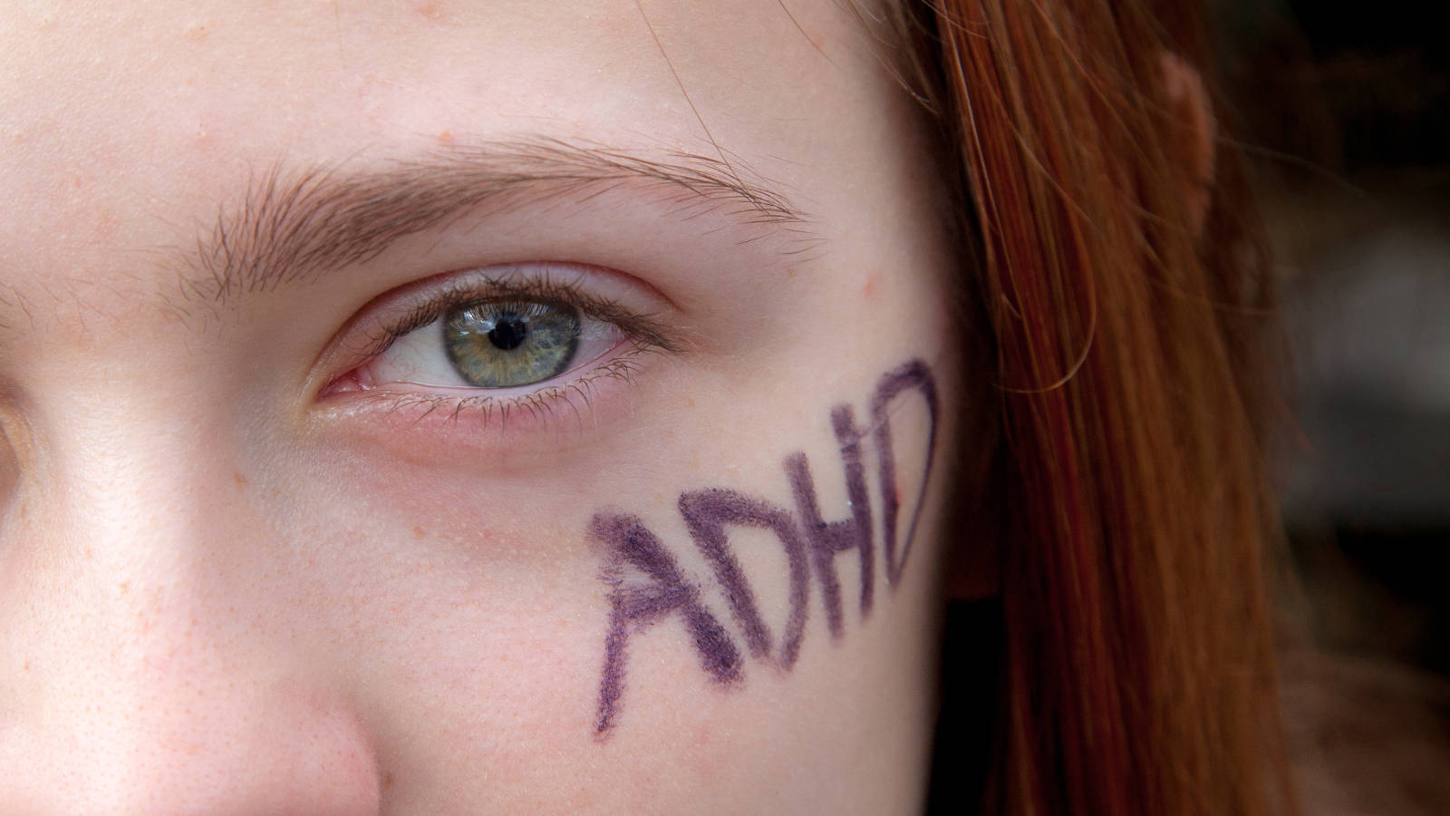 ADHD written on a girl's face